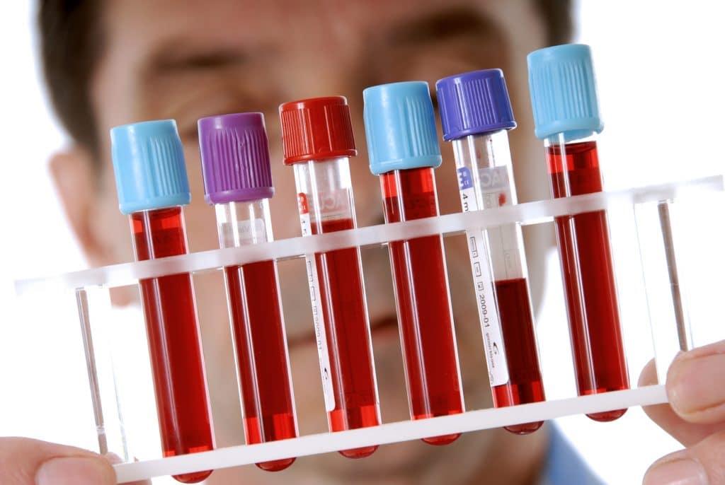 Виды анализов не связанные с менструацией