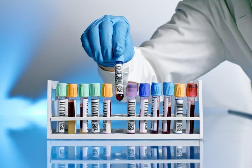 Период менопаузы анализ крови