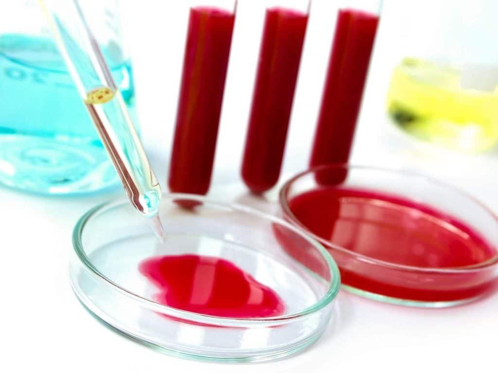 Исследование крови на биохимию