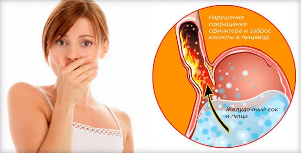 Причины изжоги в начале беременности