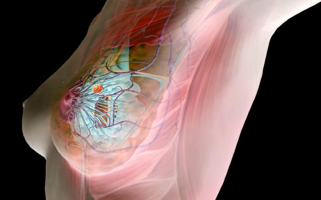 Железисто-фиброзная мастопатия