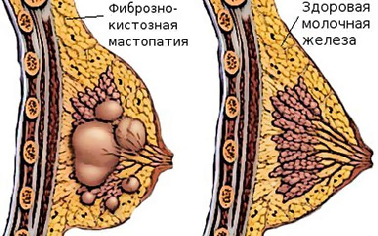 Массаж при фиброзно-кистозной мастопатии груди